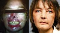 The World's First Face Transplant